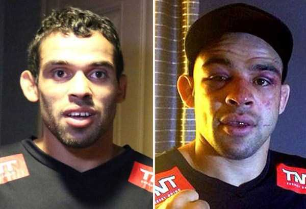 ufc-fighters-before-and-after-the-fight (9)