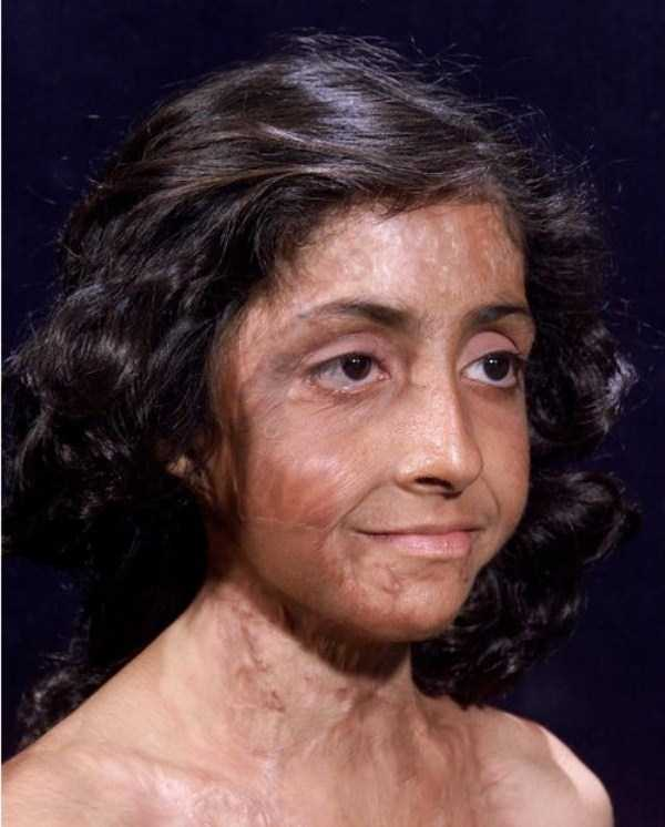 Zubaida-Hassan-facial-reconstruction (2)