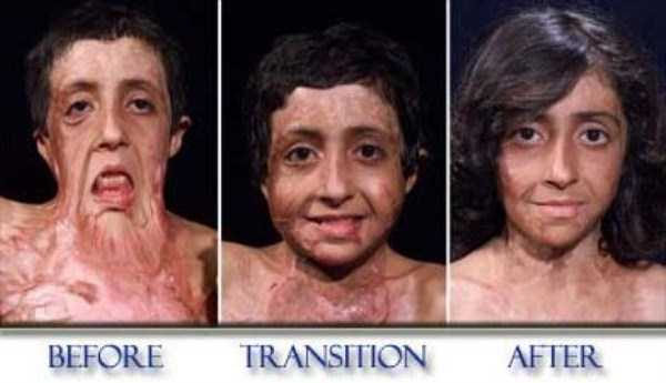 Zubaida-Hassan-facial-reconstruction (5)