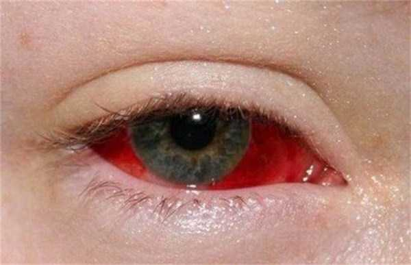 eyeball-tattoos (11)