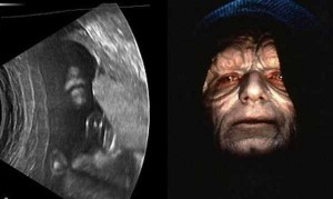Funny Things Detected by Ultrasound (20 photos) 7