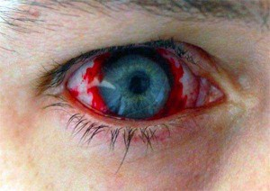 Freaky Contact Lenses that are Meant to Scare People (30 photos) 21