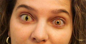 Freaky Contact Lenses that are Meant to Scare People (30 photos) 27