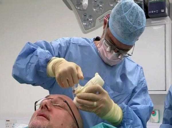 hair-transplantation-went-wrong (1)