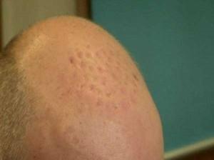Hair Transplantation Fail (5 photos) 4