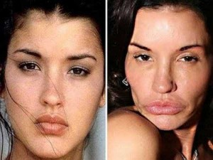 36 Funny Before and After Photos (36 photos) 28