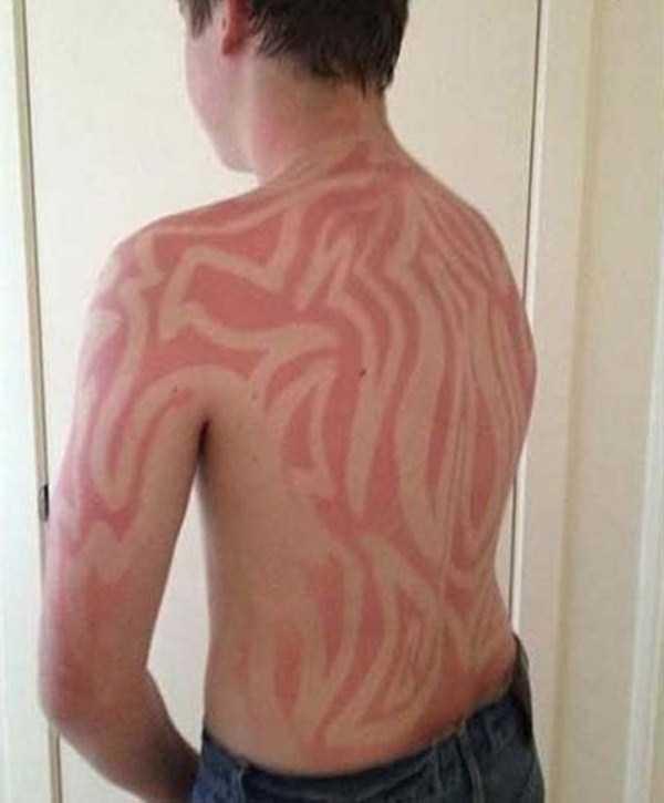 severe-sunburns (11)