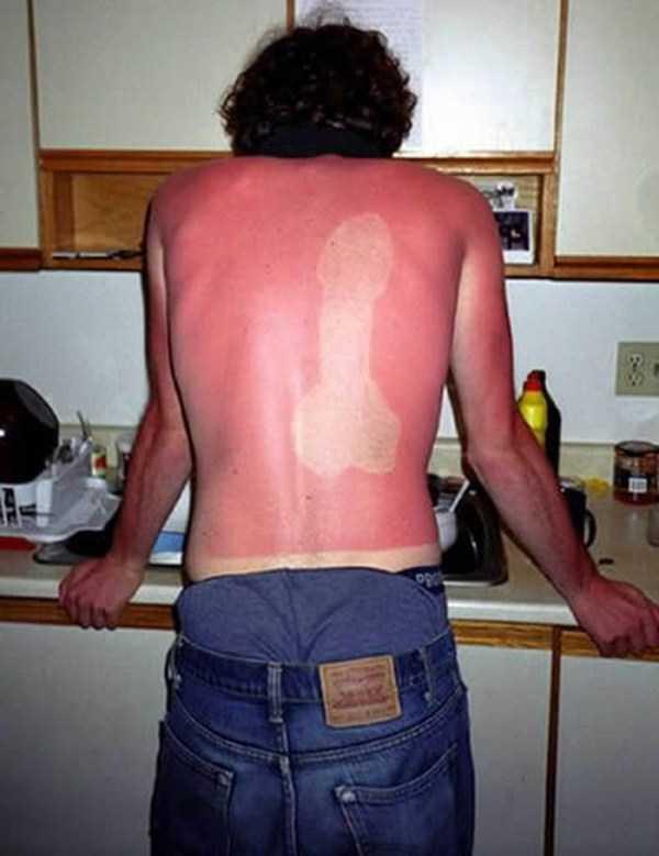 severe-sunburns (14)