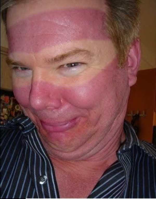 severe-sunburns (15)