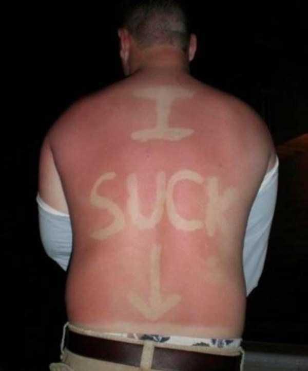 severe-sunburns (16)
