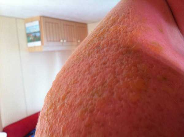 severe-sunburns (22)