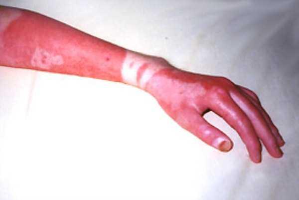 severe-sunburns (23)