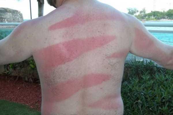 severe-sunburns (24)