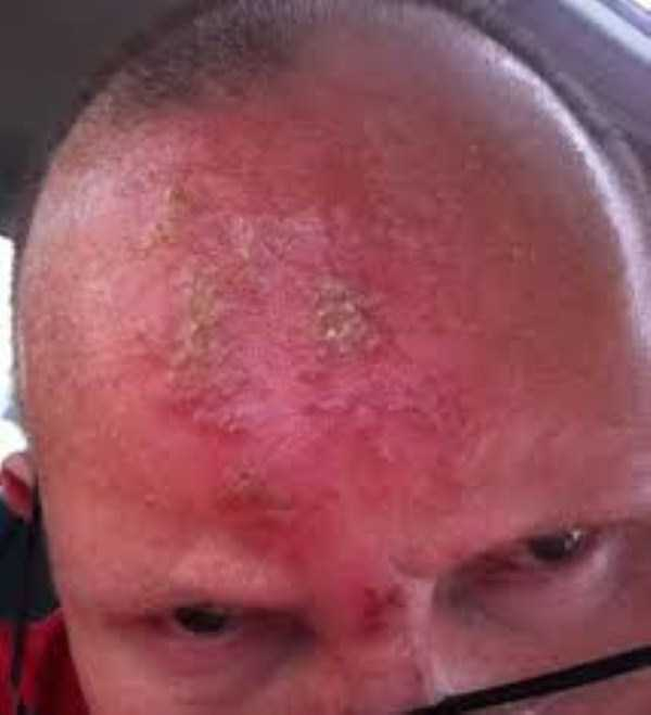 severe-sunburns (25)