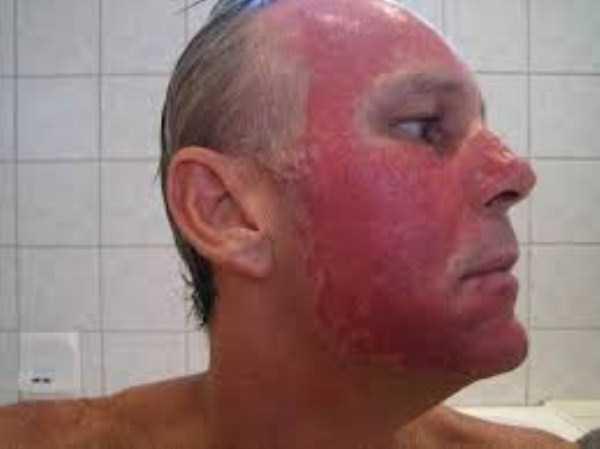severe-sunburns (26)