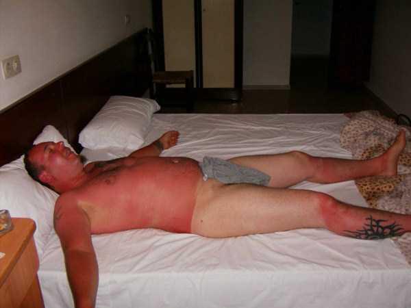 severe-sunburns (3)