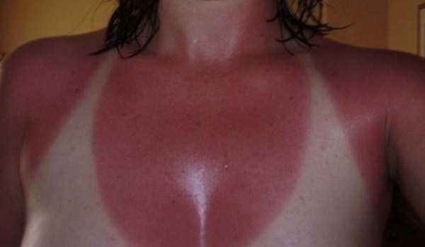 severe-sunburns (32)