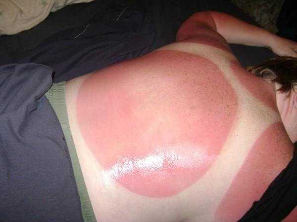 severe-sunburns (33)