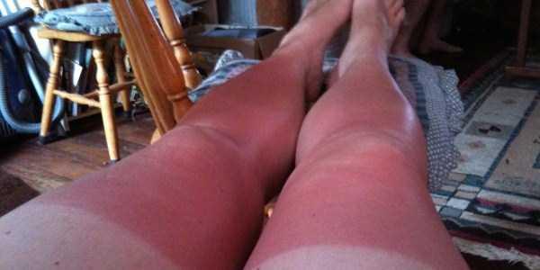 severe-sunburns (35)