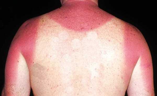 severe-sunburns (37)