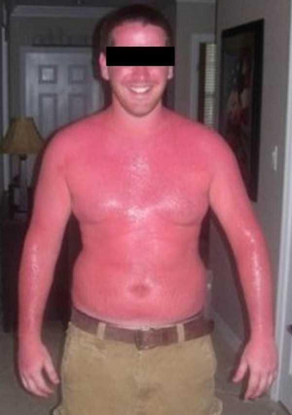 severe-sunburns (38)