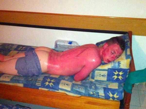 severe-sunburns (4)