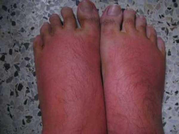 severe-sunburns (40)