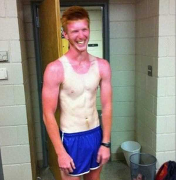 severe-sunburns (7)