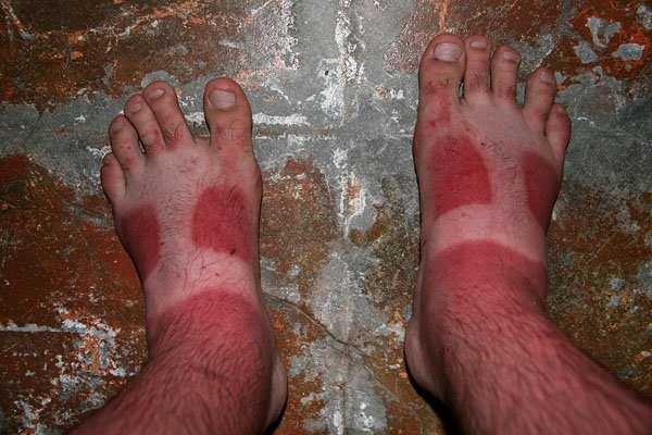 severe-sunburns (9)