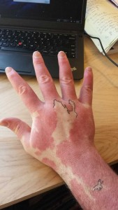 Creative Guy Turns His Birthmarks Into a Unique Map (19 photos) 1