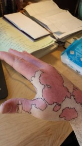 Creative Guy Turns His Birthmarks Into a Unique Map (19 photos) 8