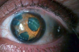 Seriously Messed Up Human Eyes (24 photos) 1