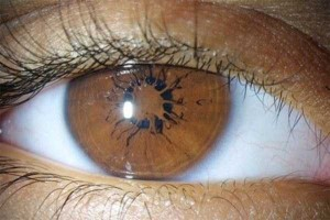 Seriously Messed Up Human Eyes (24 photos) 11