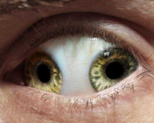 Seriously Messed Up Human Eyes (24 photos) 17