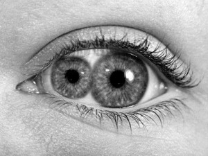 Seriously Messed Up Human Eyes (24 photos) 18