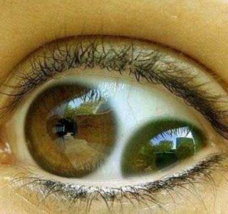 Seriously Messed Up Human Eyes (24 photos)
