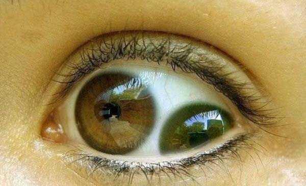 deformed-human-eyes (19)