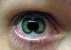 Seriously Messed Up Human Eyes (24 photos) 22