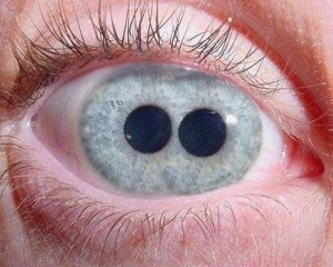 Seriously Messed Up Human Eyes (24 photos) 23