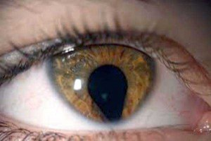 Seriously Messed Up Human Eyes (24 photos) 24