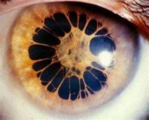 Seriously Messed Up Human Eyes (24 photos) 3