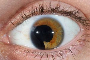 Seriously Messed Up Human Eyes (24 photos) 4