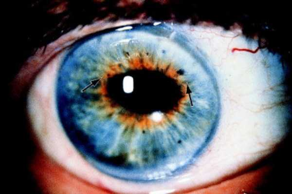 deformed-human-eyes (6)