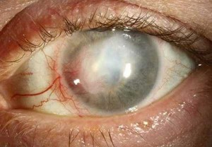 Seriously Messed Up Human Eyes (24 photos) 7
