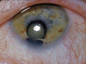 Seriously Messed Up Human Eyes (24 photos) 8