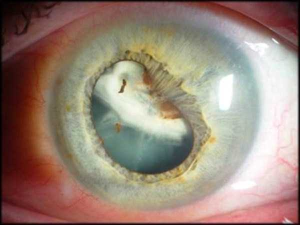 deformed-human-eyes (9)