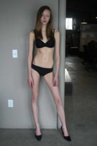Super Skinny Girls (33 photos) 2