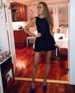 Super Skinny Girls (33 photos) 21