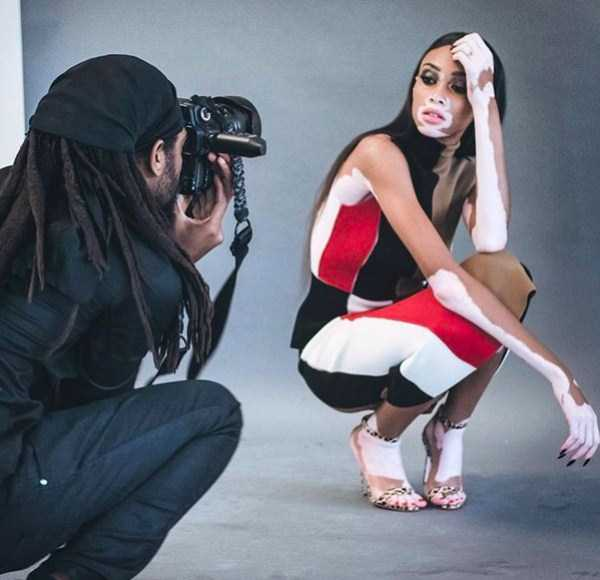 Winnie-Harlow-vitiligo-model (10)