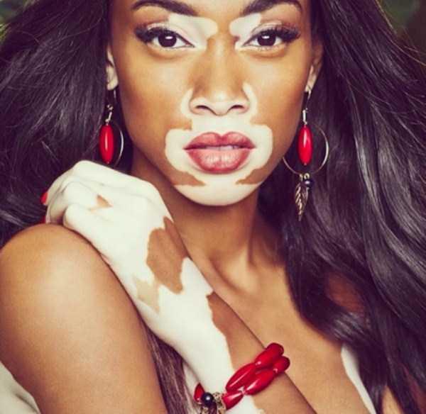 Winnie-Harlow-vitiligo-model (12)